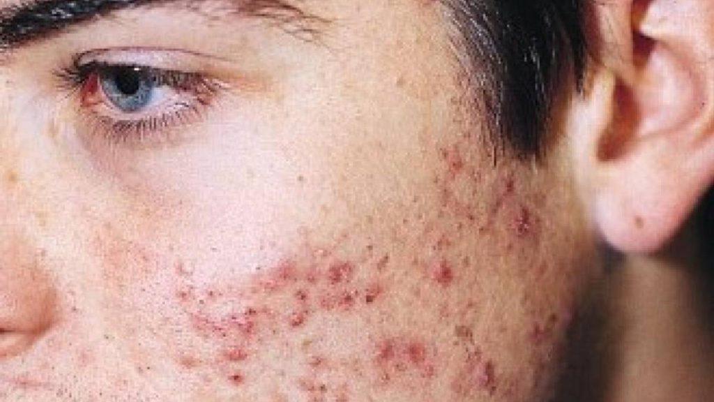 acné sin piel