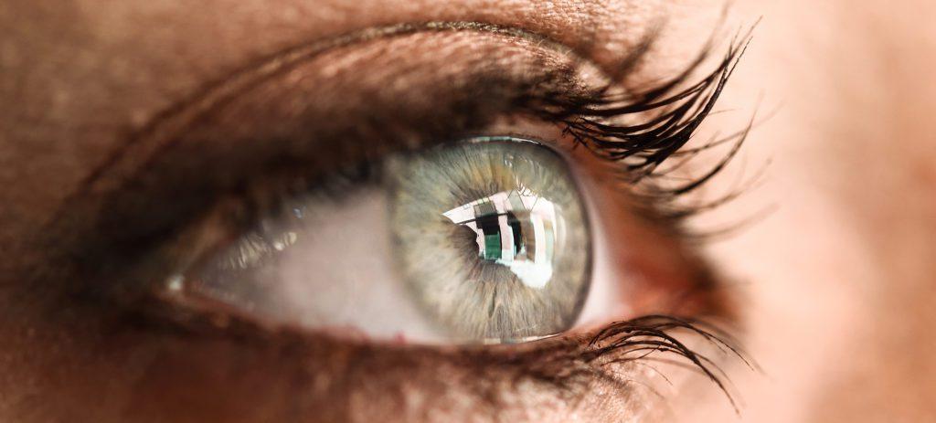 ojoss